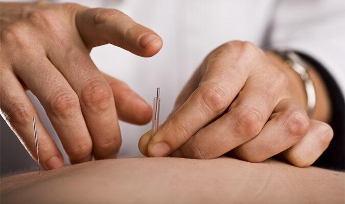 4 Surprising Benefits of Acupuncture